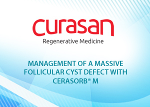 Management of a massive follicular cys defect with CERASORB M- Dr. Arwed Ludwig