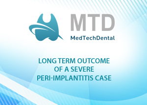 Long term outcome of a severe periimplantitis case - Dr Fernando Duarte