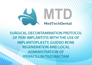 Surgical decontamination protocol of peri-implantitis with the use of implantoplasty, guided bone regeneration and local administration of piperacillin /tazobactam - Giacomo Bartoloni, Alessandro Tosetti