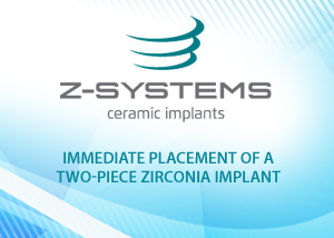 Immediate Placement of a two-piece zirconia implant - Ralf Luettmann